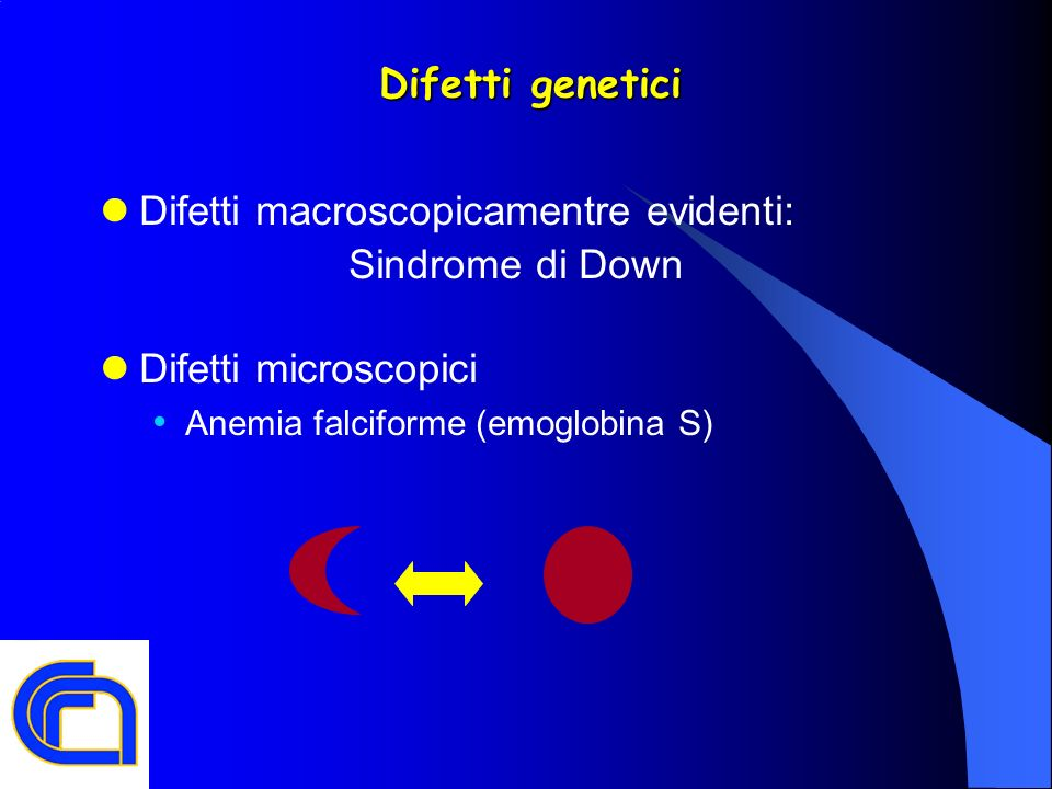 Difetti macroscopicamentre evidenti: Sindrome di Down