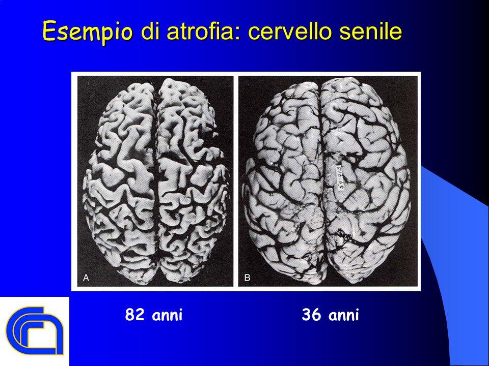 Esempio di atrofia: cervello senile