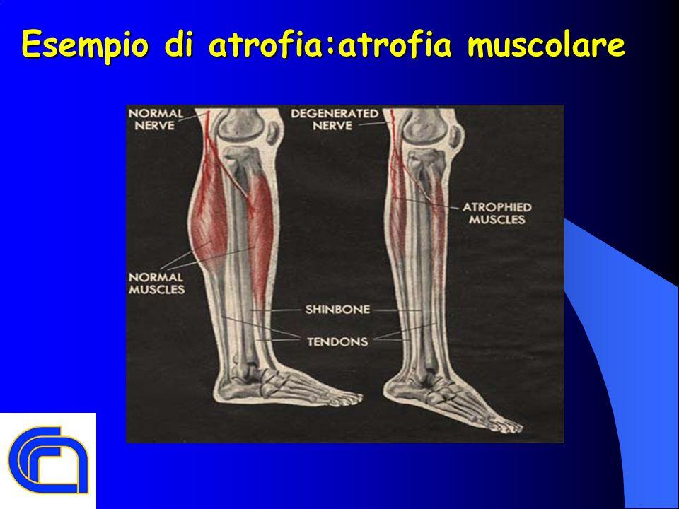 Esempio di atrofia:atrofia muscolare