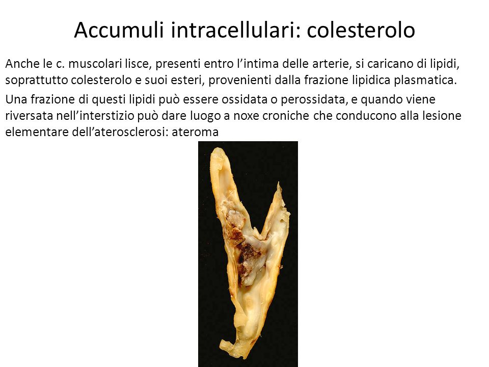 Accumuli intracellulari: colesterolo