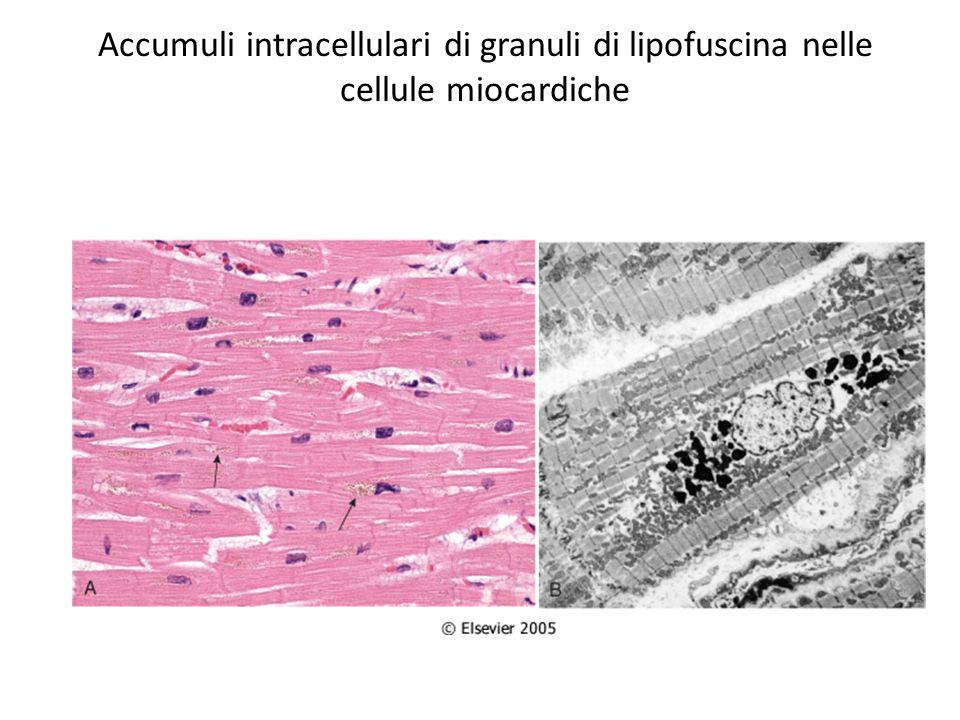 Accumuli intracellulari di granuli di lipofuscina nelle cellule miocardiche
