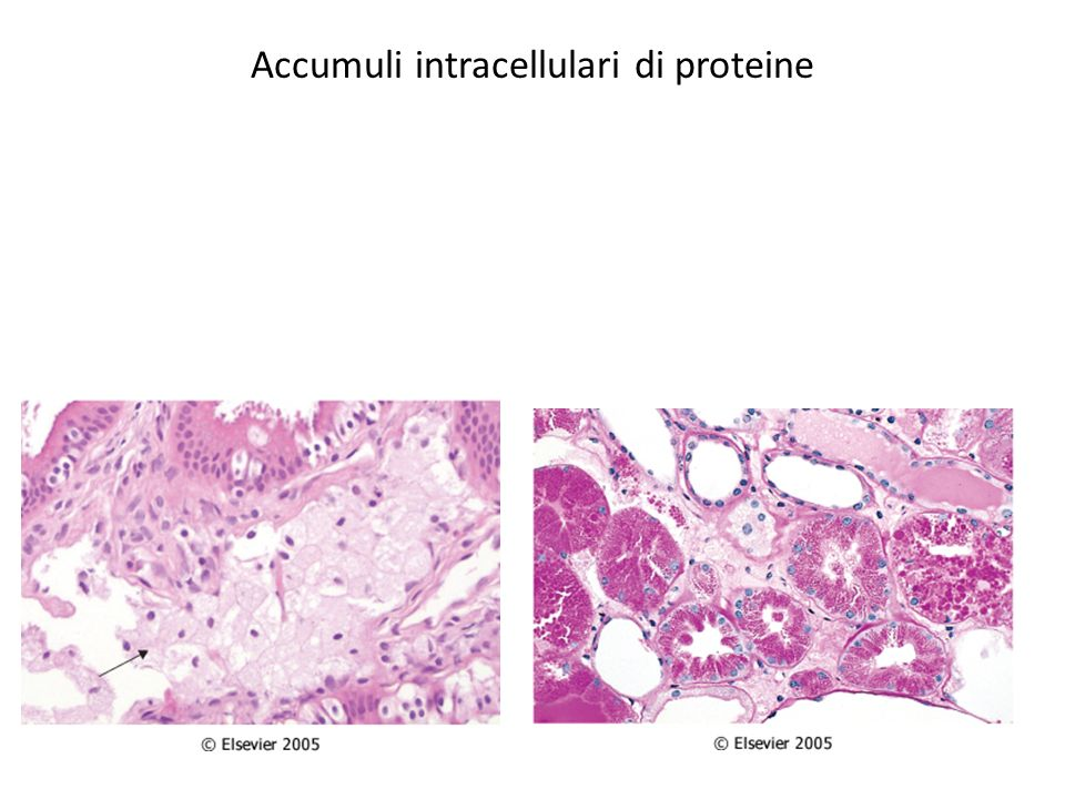 Accumuli intracellulari di proteine