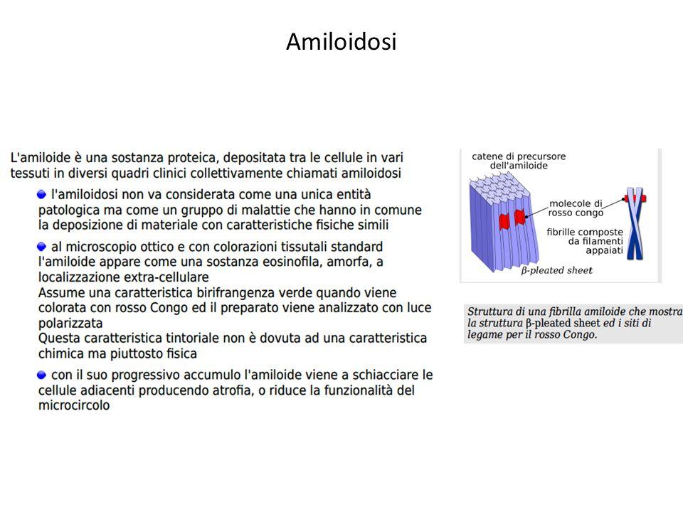 Amiloidosi