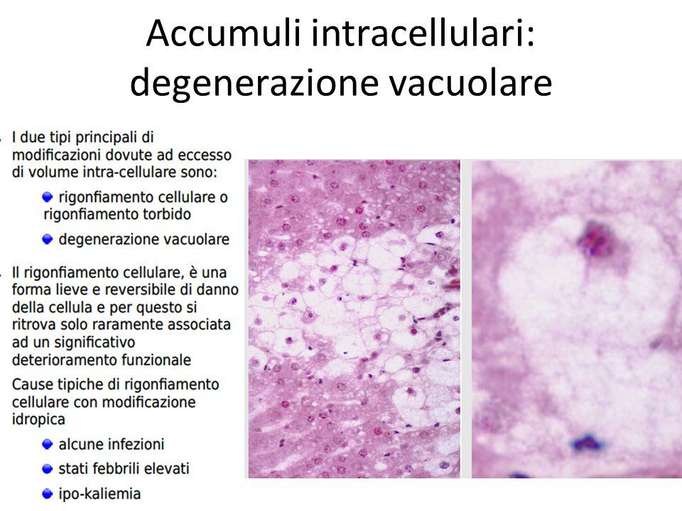 Accumuli intracellulari: degenerazione vacuolare