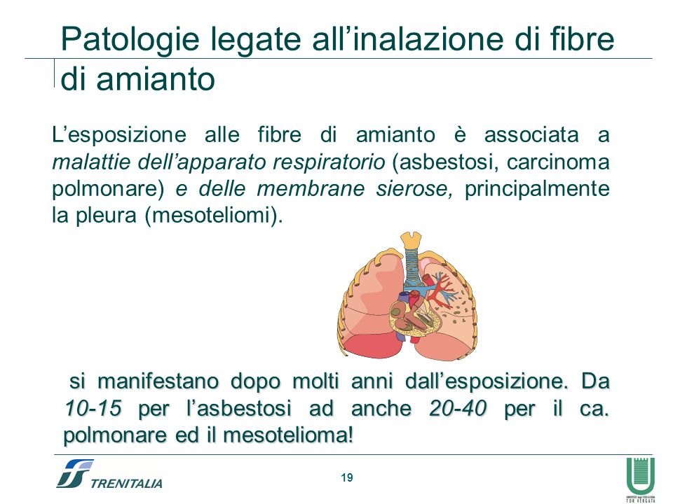 Patologie legate all'inalazione di fibre di amianto