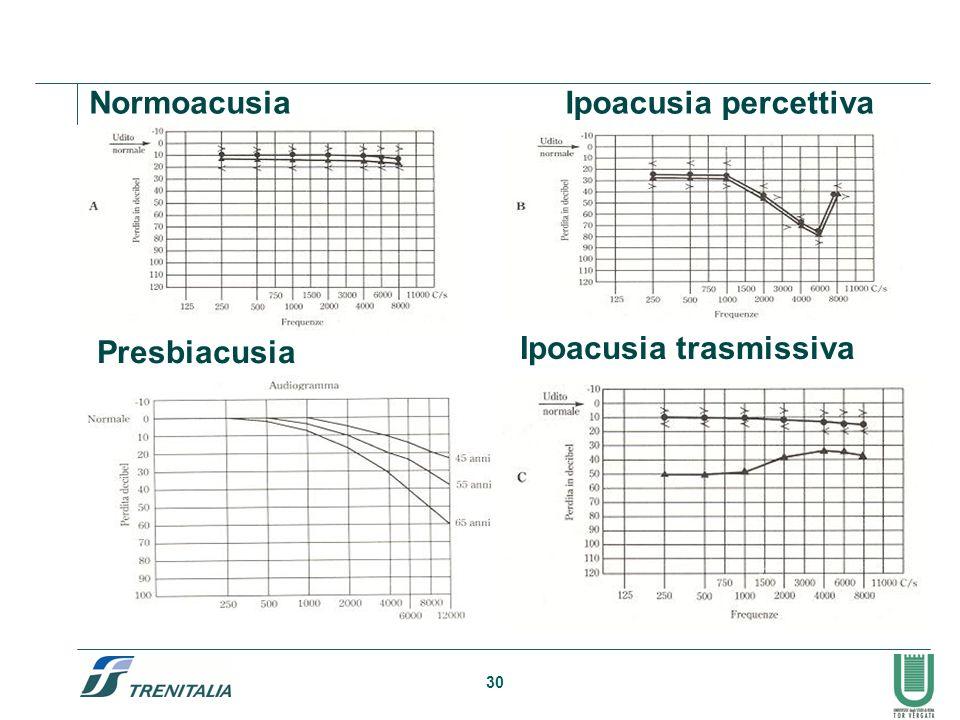 Normoacusia Ipoacusia percettiva Presbiacusia Ipoacusia trasmissiva