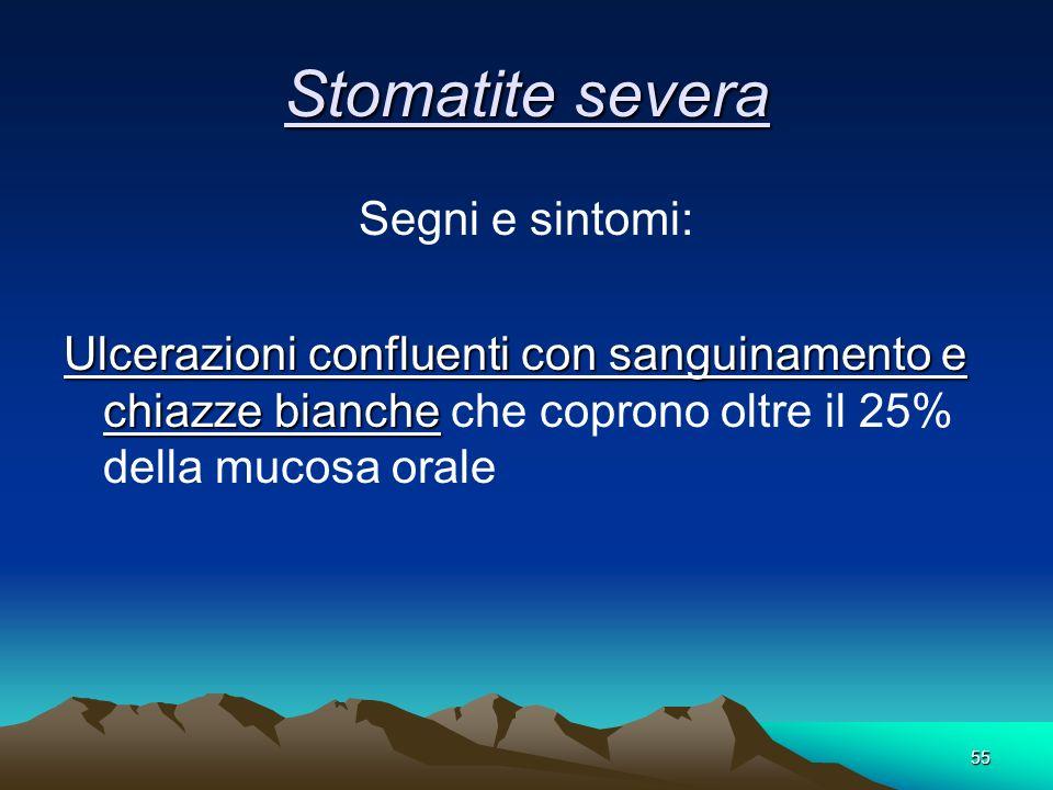 Stomatite severa Segni e sintomi: