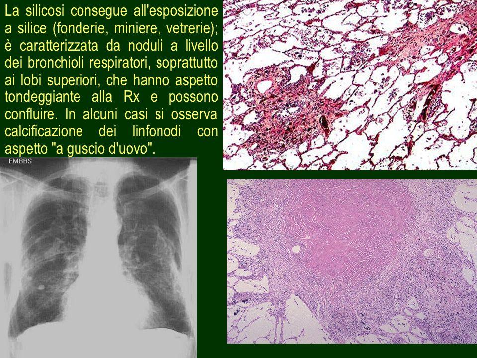 La silicosi consegue all esposizione a silice (fonderie, miniere, vetrerie); è caratterizzata da noduli a livello dei bronchioli respiratori, soprattutto ai lobi superiori, che hanno aspetto tondeggiante alla Rx e possono confluire.