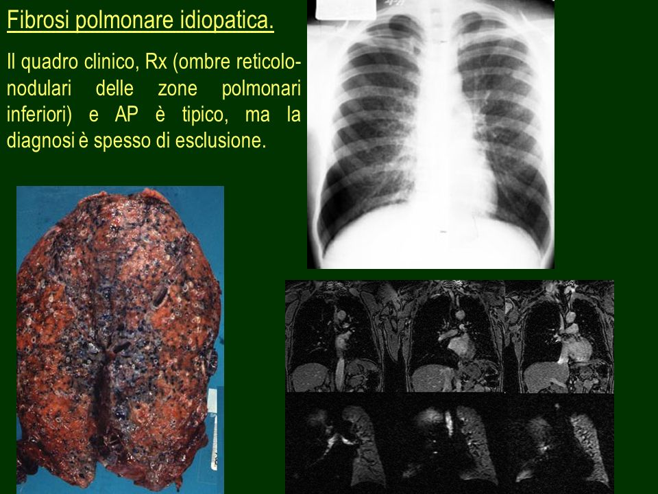 Fibrosi polmonare idiopatica.