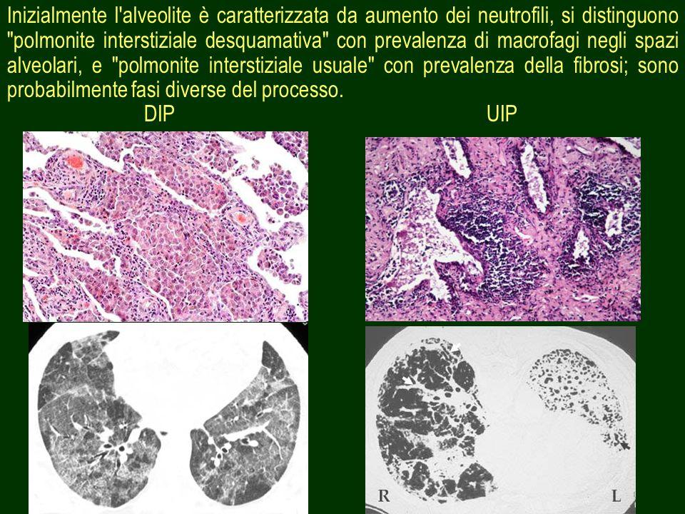 Inizialmente l alveolite è caratterizzata da aumento dei neutrofili, si distinguono polmonite interstiziale desquamativa con prevalenza di macrofagi negli spazi alveolari, e polmonite interstiziale usuale con prevalenza della fibrosi; sono probabilmente fasi diverse del processo.