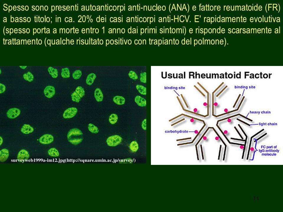 Spesso sono presenti autoanticorpi anti-nucleo (ANA) e fattore reumatoide (FR) a basso titolo; in ca.
