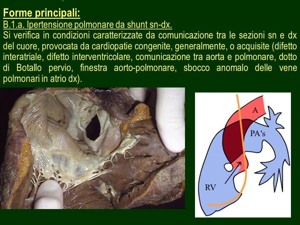 Forme principali: B.1.a. Ipertensione polmonare da shunt sn-dx.