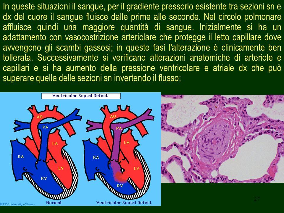 In queste situazioni il sangue, per il gradiente pressorio esistente tra sezioni sn e dx del cuore il sangue fluisce dalle prime alle seconde.