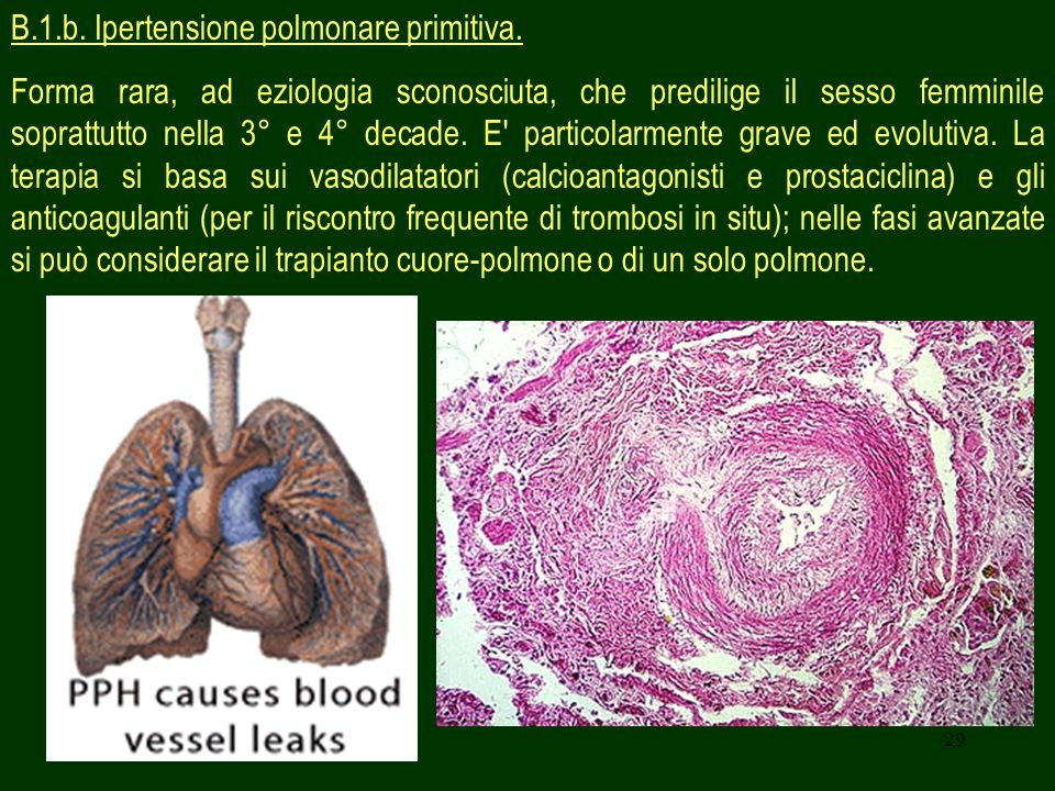B.1.b. Ipertensione polmonare primitiva.
