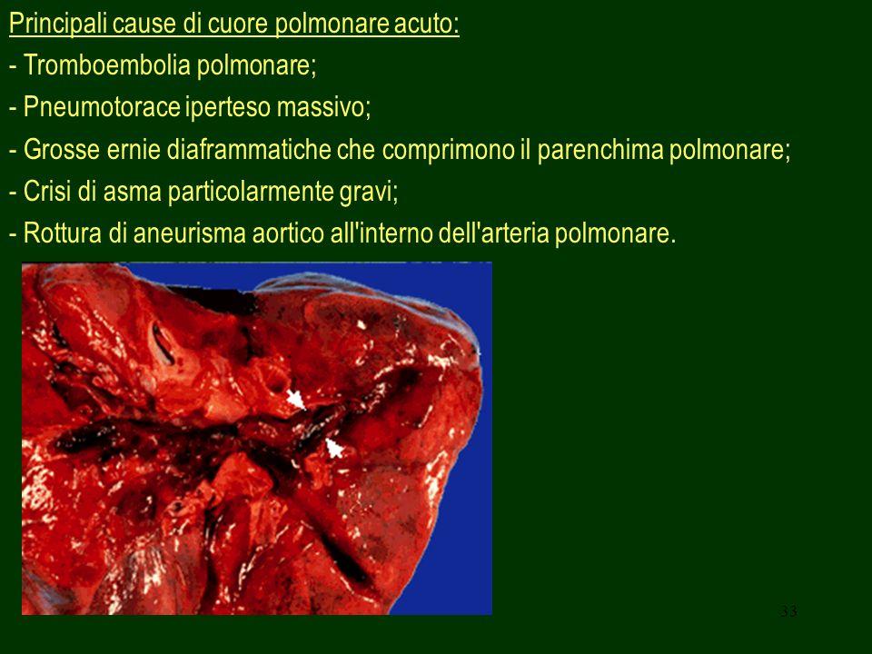 Principali cause di cuore polmonare acuto: