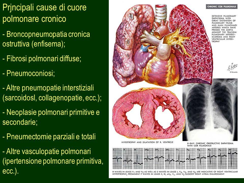 Prjncipali cause di cuore polmonare cronico