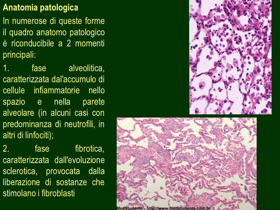Anatomia patologica In numerose di queste forme il quadro anatomo patologico è riconducibile a 2 momenti principali:
