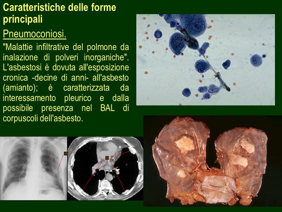 Caratteristiche delle forme principali Pneumoconiosi.