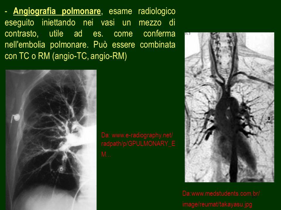 - Angiografia polmonare, esame radiologico eseguito iniettando nei vasi un mezzo di contrasto, utile ad es. come conferma nell embolia polmonare. Può essere combinata con TC o RM (angio-TC, angio-RM)