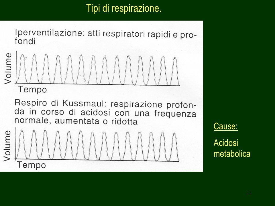 Tipi di respirazione. Cause: Acidosi metabolica