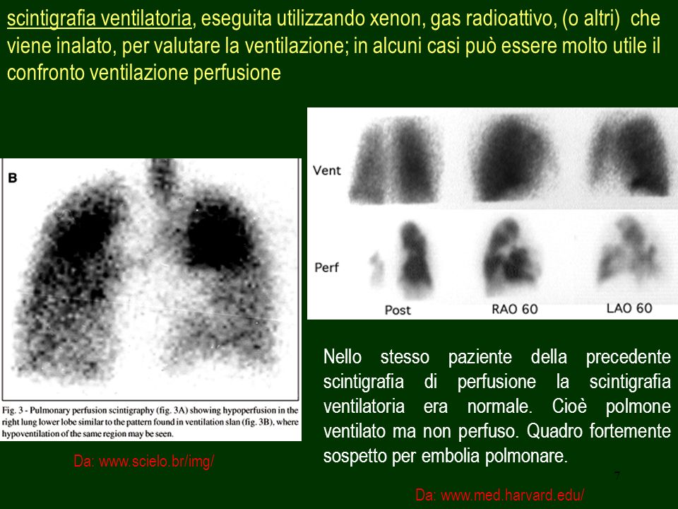 scintigrafia ventilatoria, eseguita utilizzando xenon, gas radioattivo, (o altri) che viene inalato, per valutare la ventilazione; in alcuni casi può essere molto utile il confronto ventilazione perfusione