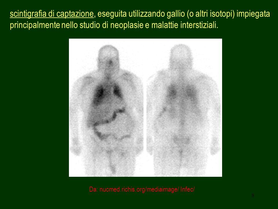 scintigrafia di captazione, eseguita utilizzando gallio (o altri isotopi) impiegata principalmente nello studio di neoplasie e malattie interstiziali.