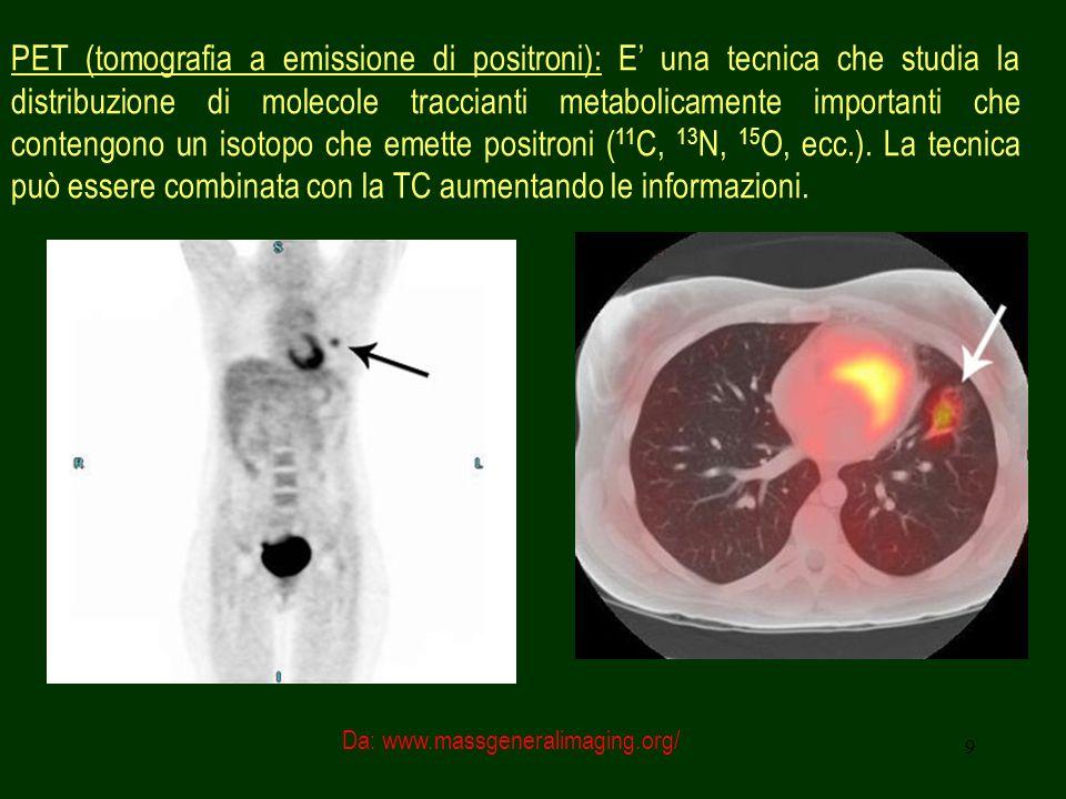 PET (tomografia a emissione di positroni): E' una tecnica che studia la distribuzione di molecole traccianti metabolicamente importanti che contengono un isotopo che emette positroni (11C, 13N, 15O, ecc.). La tecnica può essere combinata con la TC aumentando le informazioni.