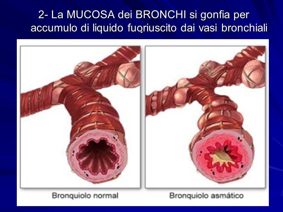 2- La MUCOSA dei BRONCHI si gonfia per accumulo di liquido fuoriuscito dai vasi bronchiali
