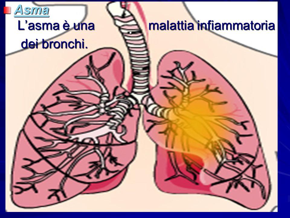 Asma L'asma è una malattia infiammatoria