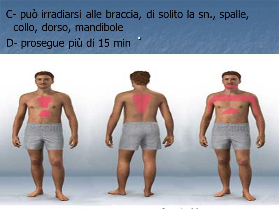 C- può irradiarsi alle braccia, di solito la sn