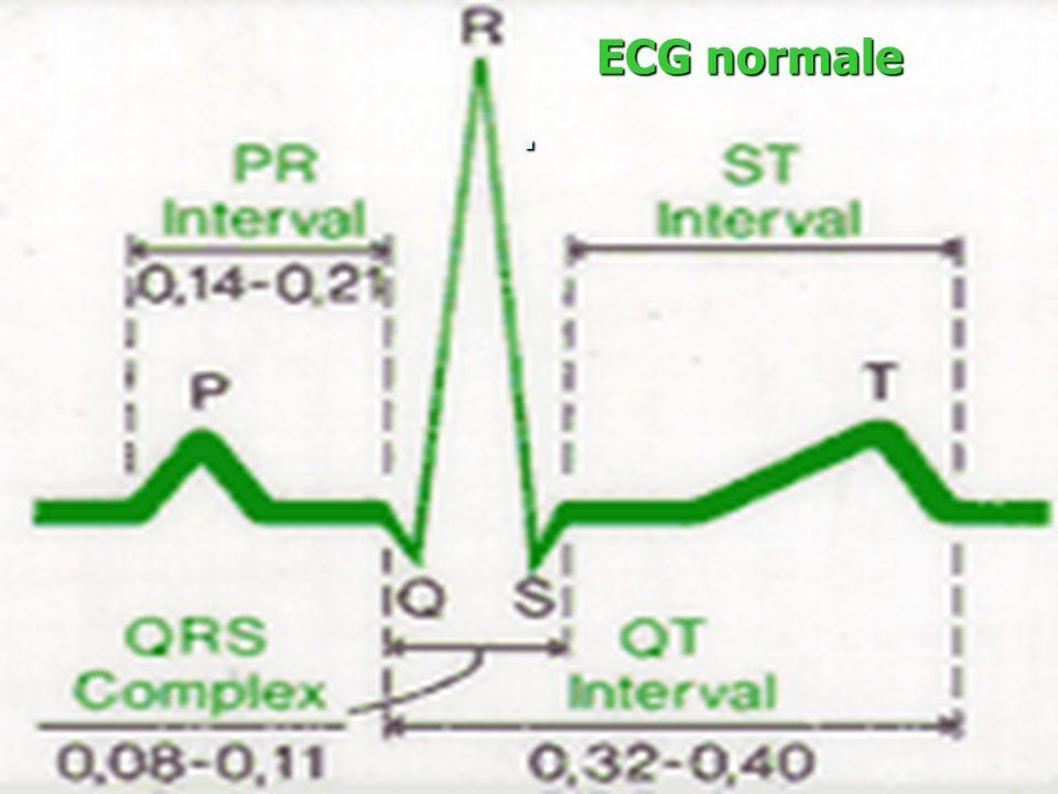ECG normale .
