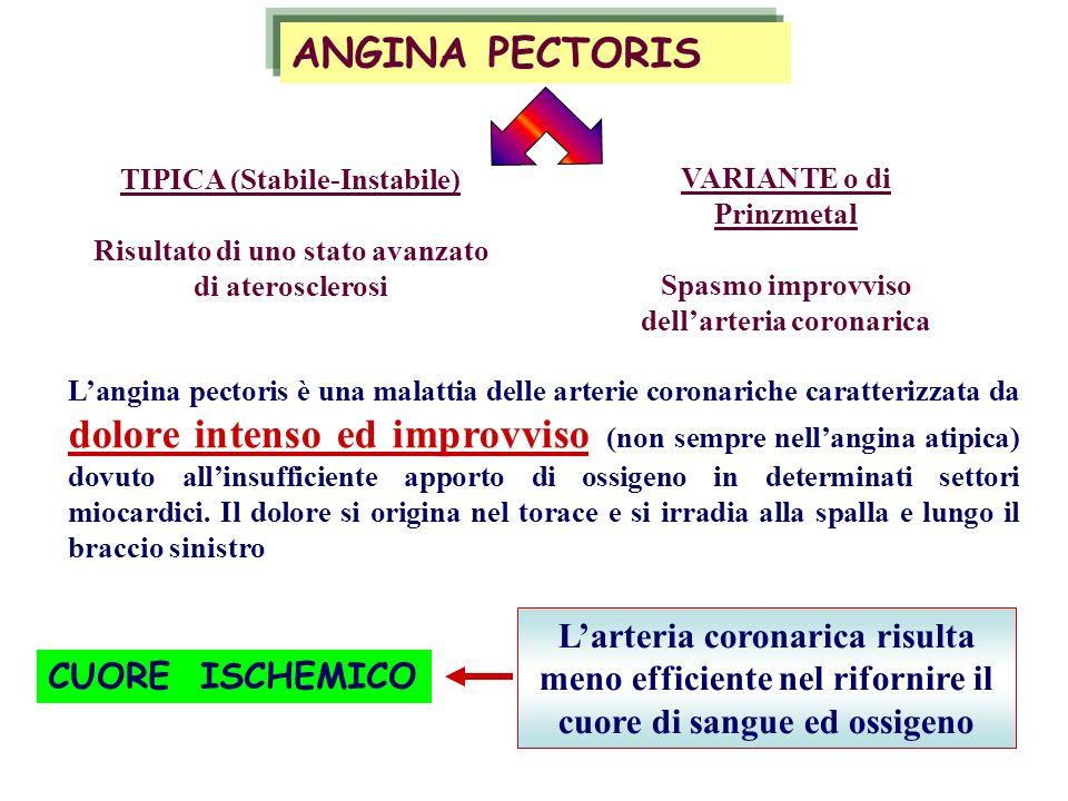 ANGINA PECTORIS TIPICA (Stabile-Instabile) Risultato di uno stato avanzato di aterosclerosi. VARIANTE o di Prinzmetal.