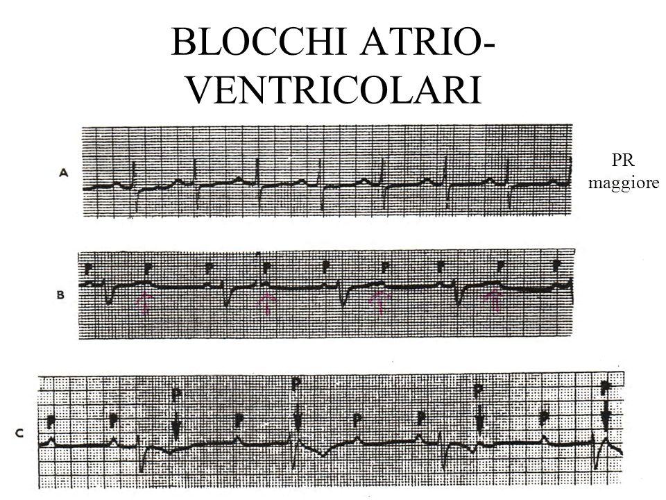 BLOCCHI ATRIO-VENTRICOLARI