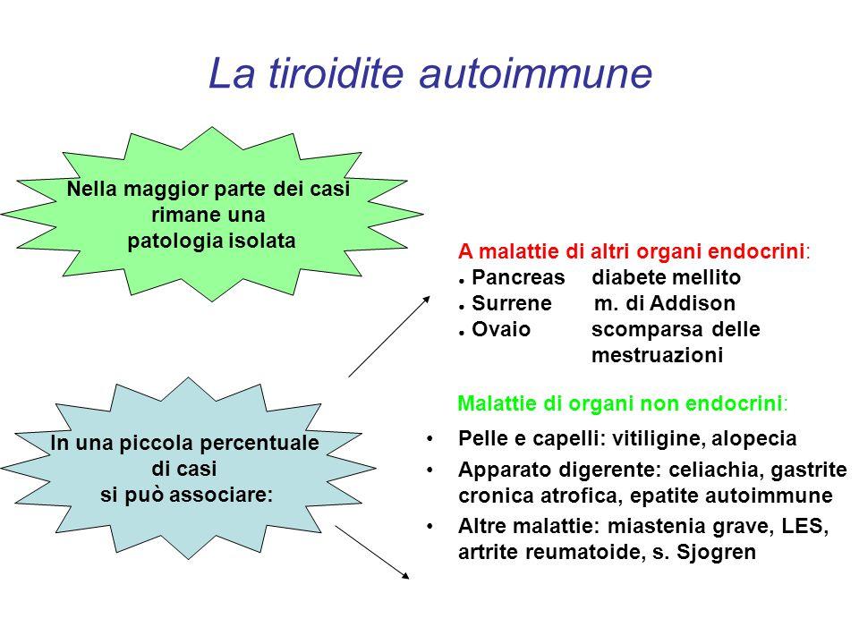 La tiroidite autoimmune