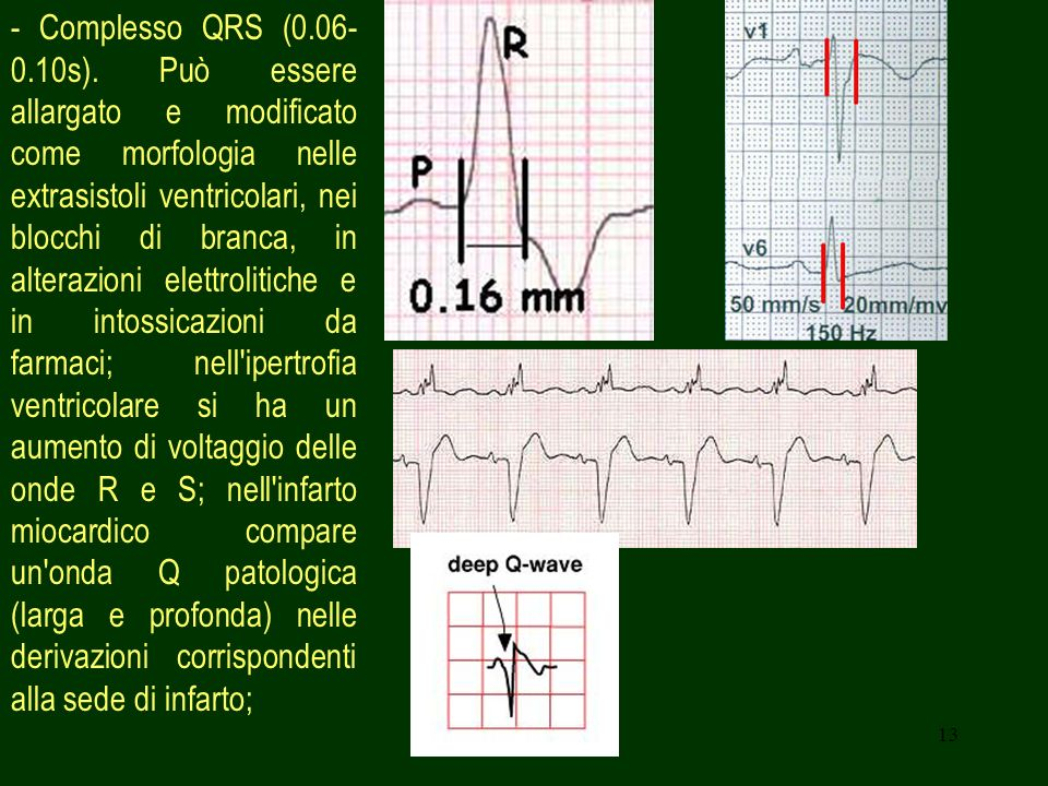 - Complesso QRS (0.06-0.10s).