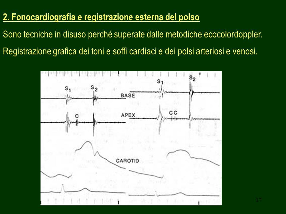 2. Fonocardiografia e registrazione esterna del polso
