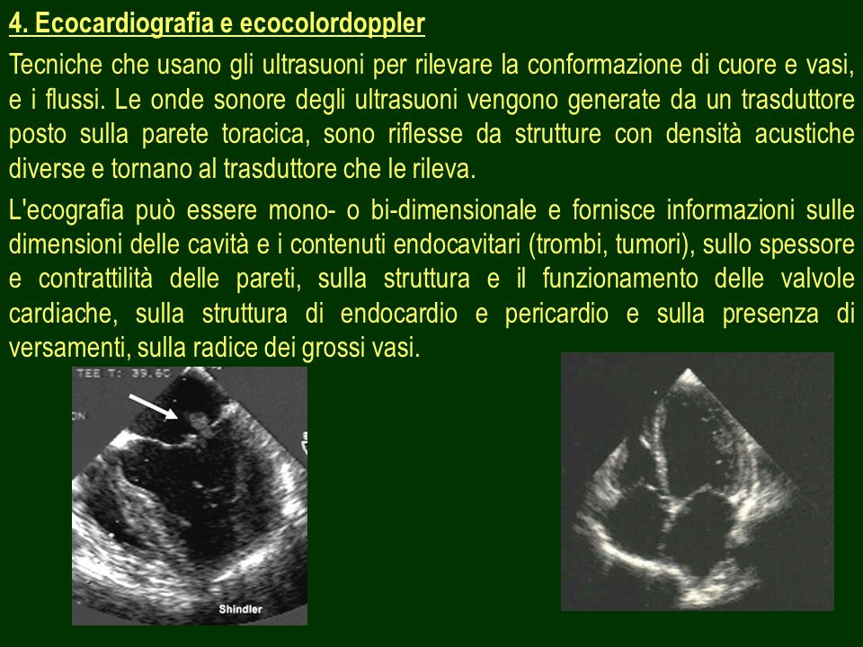 4. Ecocardiografia e ecocolordoppler