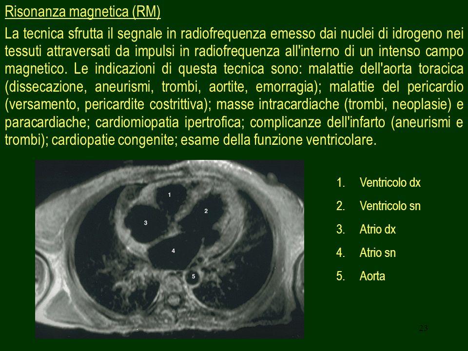 Risonanza magnetica (RM)