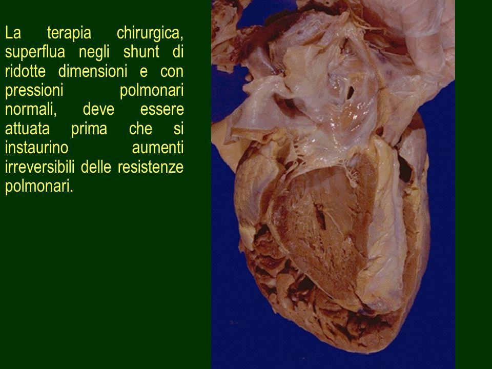 La terapia chirurgica, superflua negli shunt di ridotte dimensioni e con pressioni polmonari normali, deve essere attuata prima che si instaurino aumenti irreversibili delle resistenze polmonari.