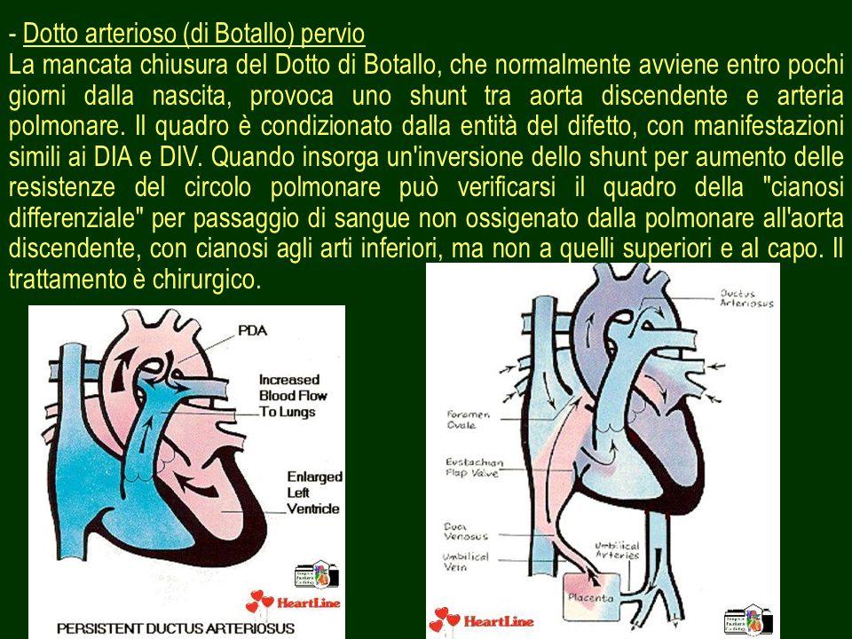- Dotto arterioso (di Botallo) pervio