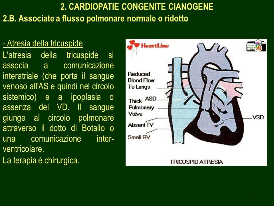 2. CARDIOPATIE CONGENITE CIANOGENE