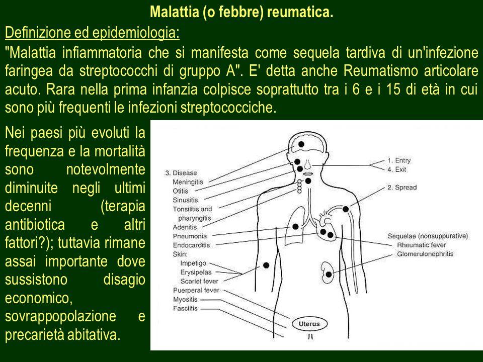 Malattia (o febbre) reumatica.