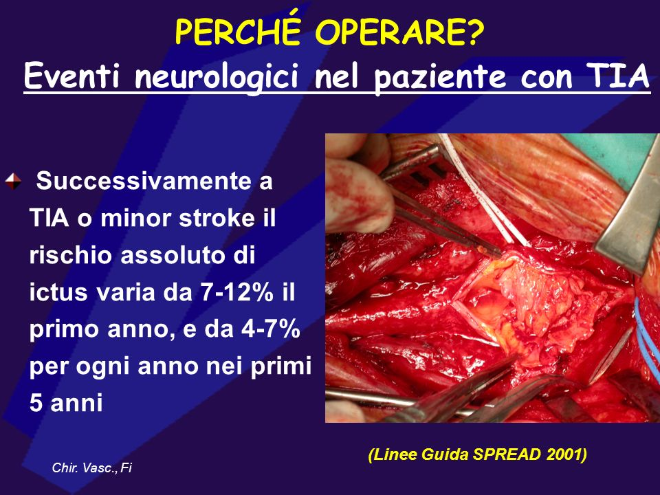 PERCHÉ OPERARE Eventi neurologici nel paziente con TIA