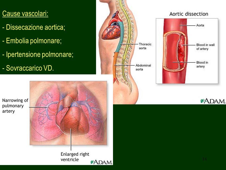 Cause vascolari: - Dissecazione aortica; - Embolia polmonare; - Ipertensione polmonare; - Sovraccarico VD.