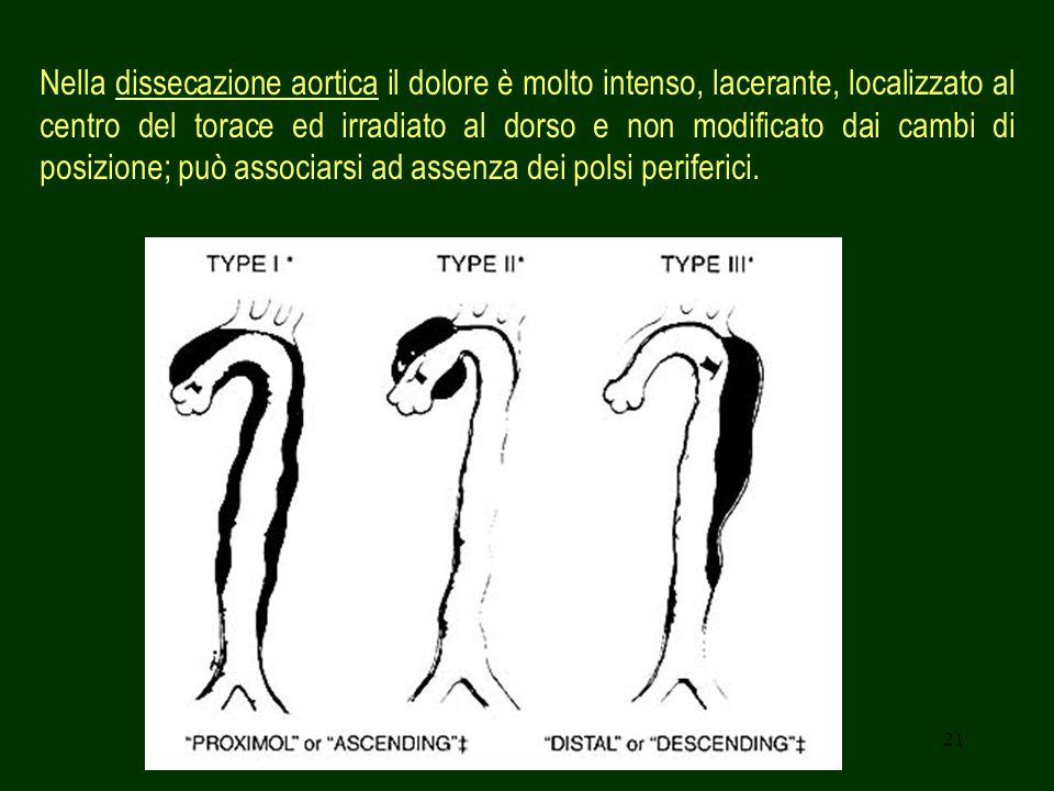 Nella dissecazione aortica il dolore è molto intenso, lacerante, localizzato al centro del torace ed irradiato al dorso e non modificato dai cambi di posizione; può associarsi ad assenza dei polsi periferici.