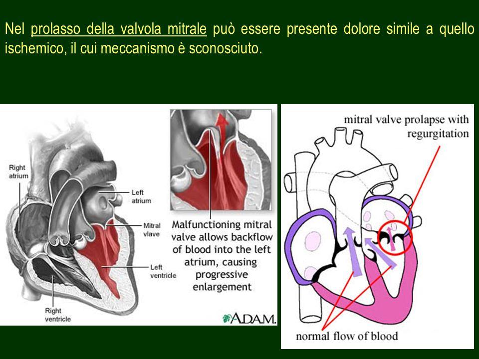 Nel prolasso della valvola mitrale può essere presente dolore simile a quello ischemico, il cui meccanismo è sconosciuto.