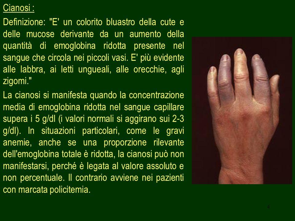 Cianosi :