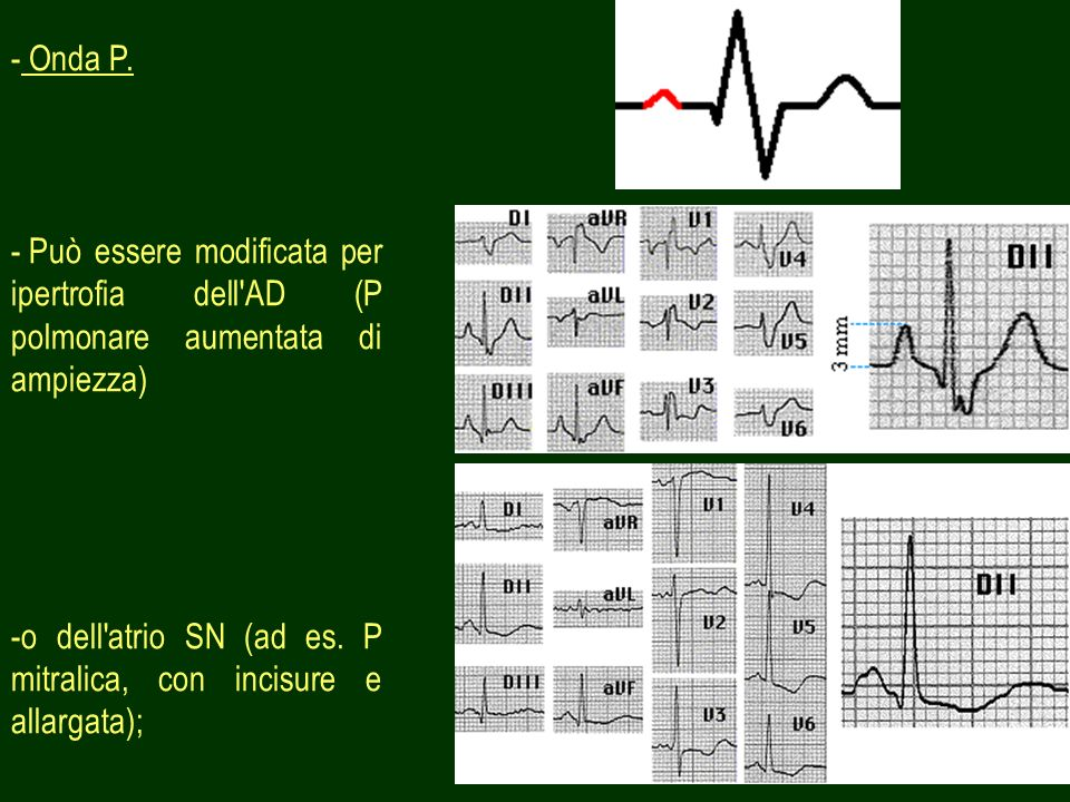 Onda P. Può essere modificata per ipertrofia dell AD (P polmonare aumentata di ampiezza)