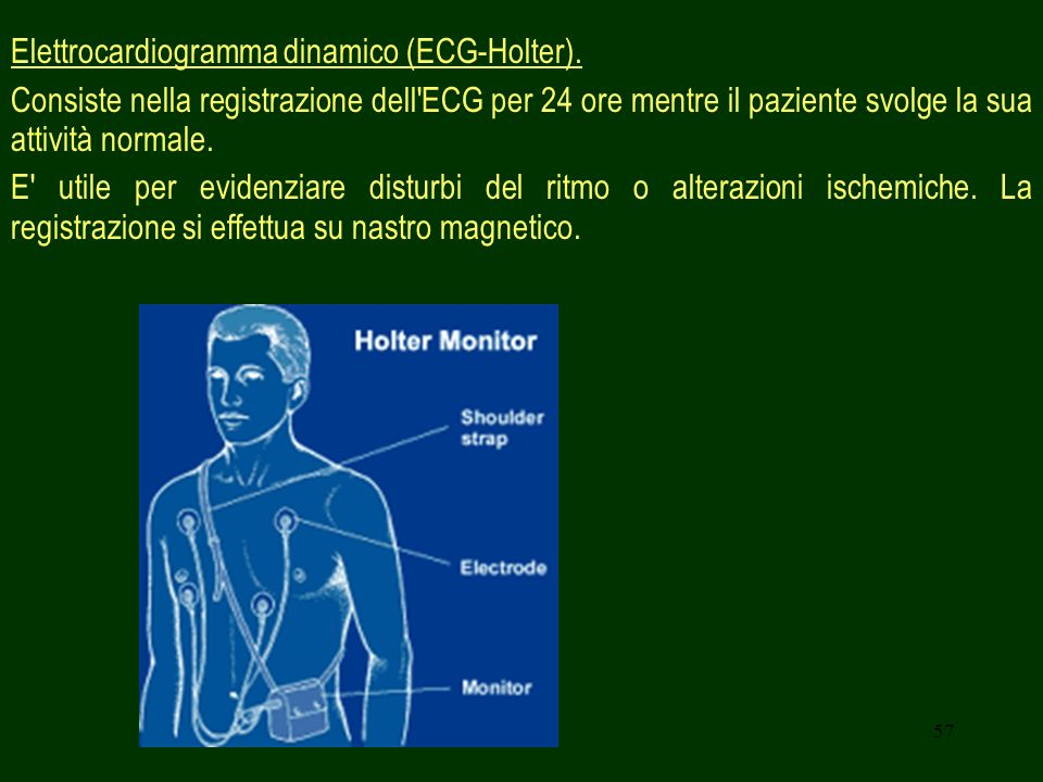 Elettrocardiogramma dinamico (ECG-Holter).