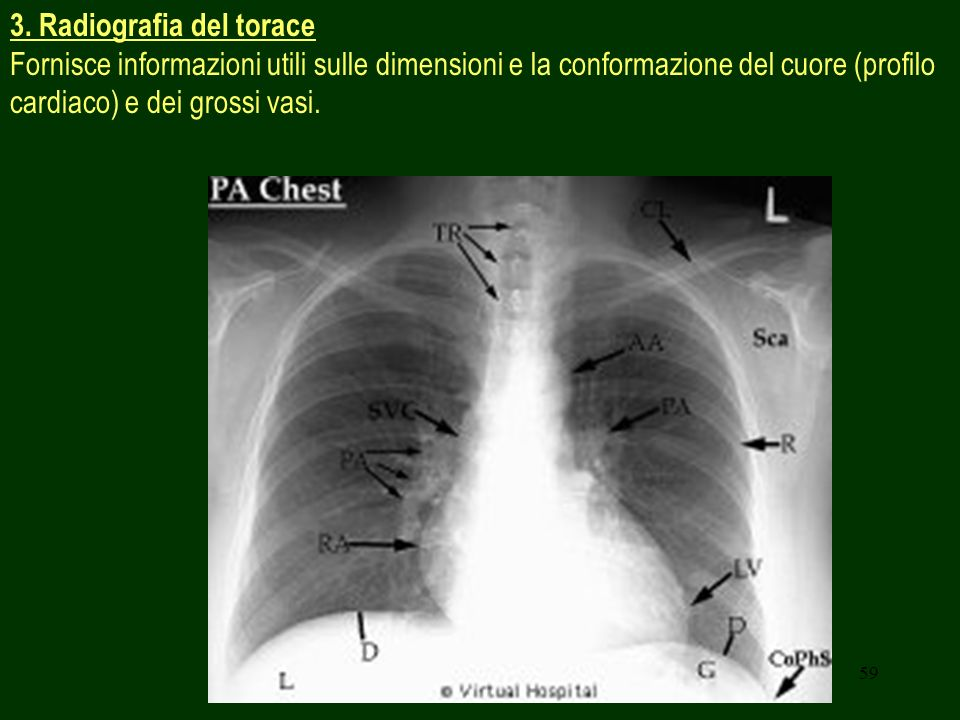 3. Radiografia del torace